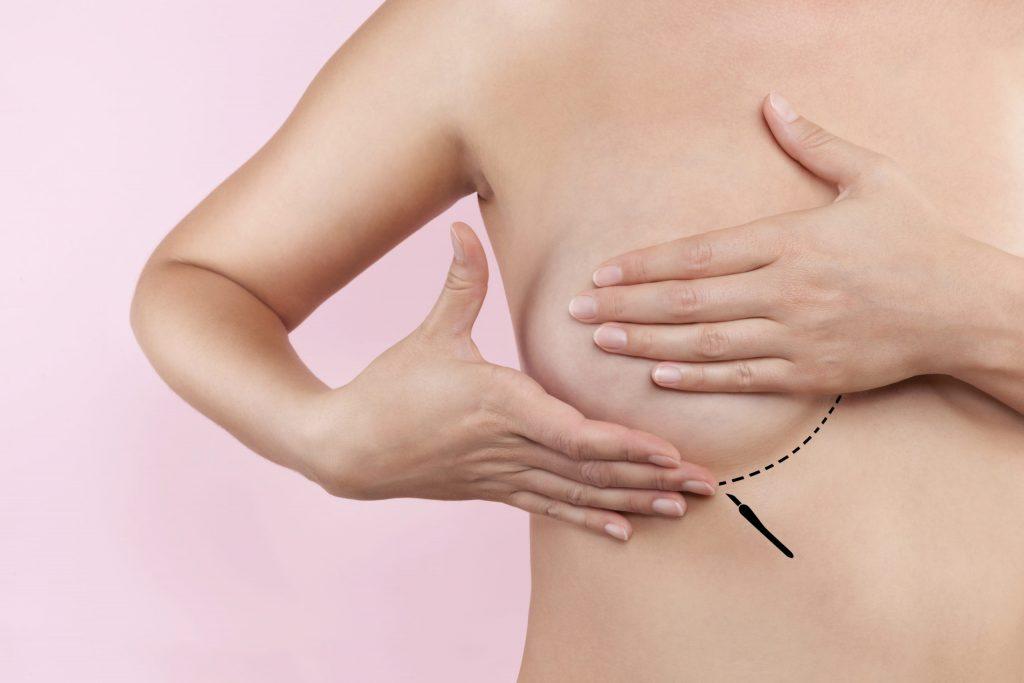 Mamoplastia e próteses de silicone prejudicam a amamentação?